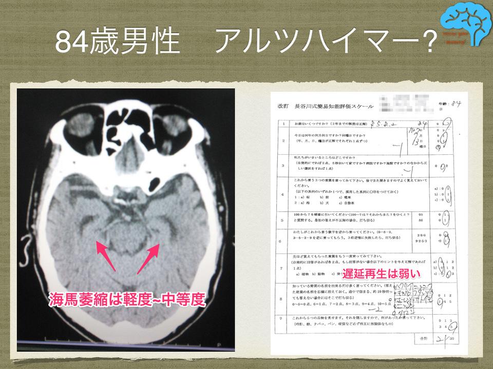 アルツハイマー型認知症と誤診