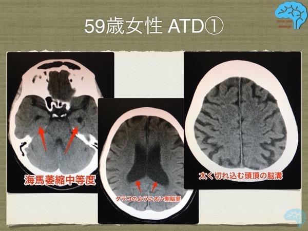 若年性アルツハイマーの頭部CT画像