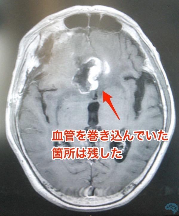 転移性脳腫瘍術後MRI画像