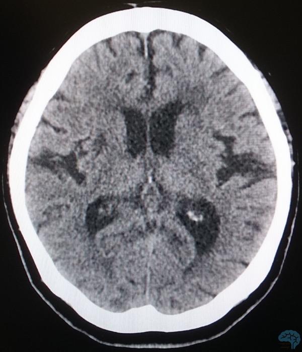 正常圧水頭症の軸位断CT画像