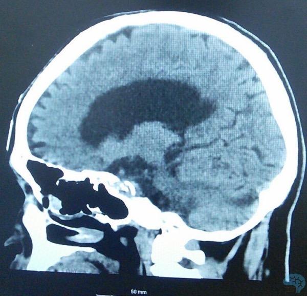 正常圧水頭症の矢状断頭部CT画像