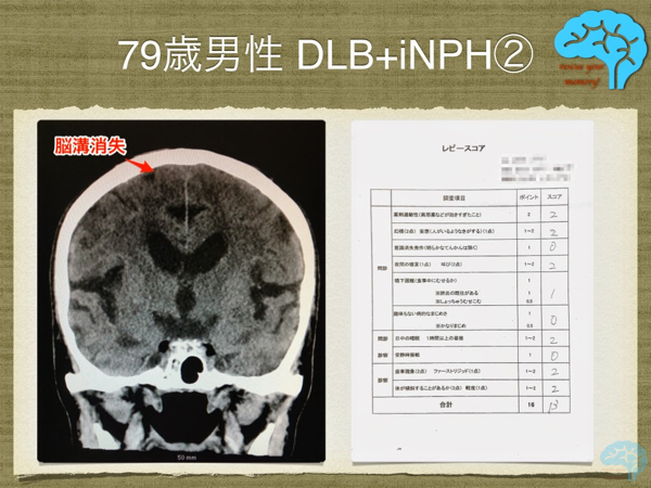 DLB+iNPHの頭部CT画像