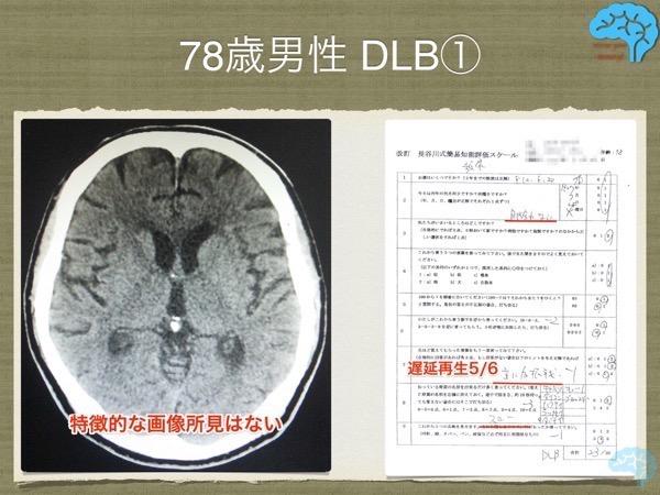 レビー小体型認知症の頭部CTと長谷川式テスト