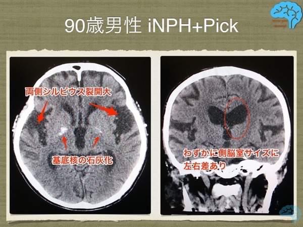 90代男性、ピックと正常圧水頭症合併例