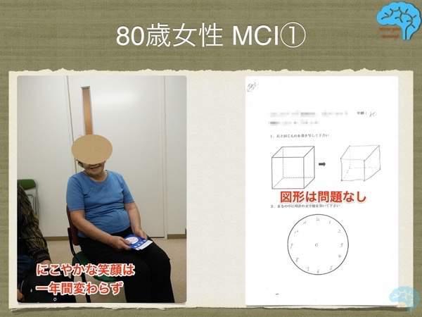 80歳女性 軽度認知機能障害