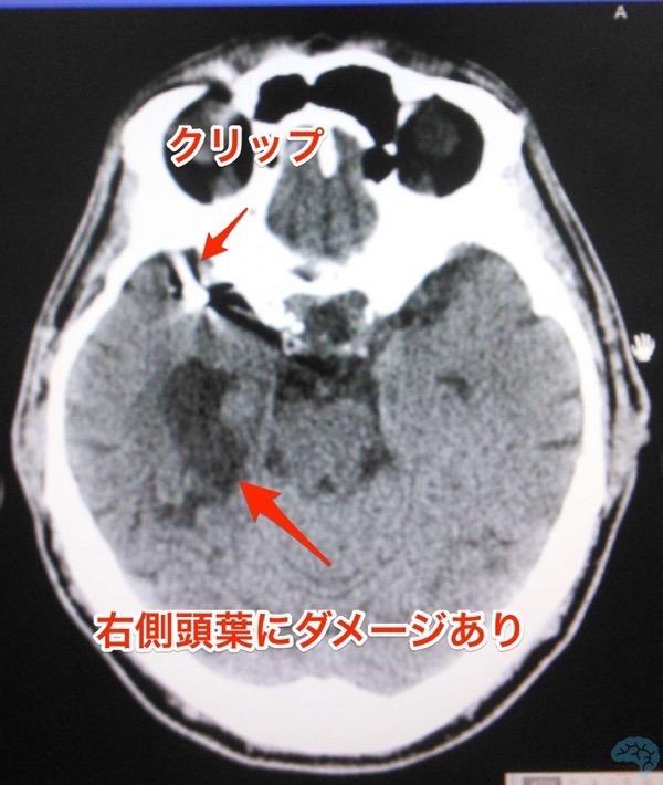 くも膜下出血クリッピング術後の認知症