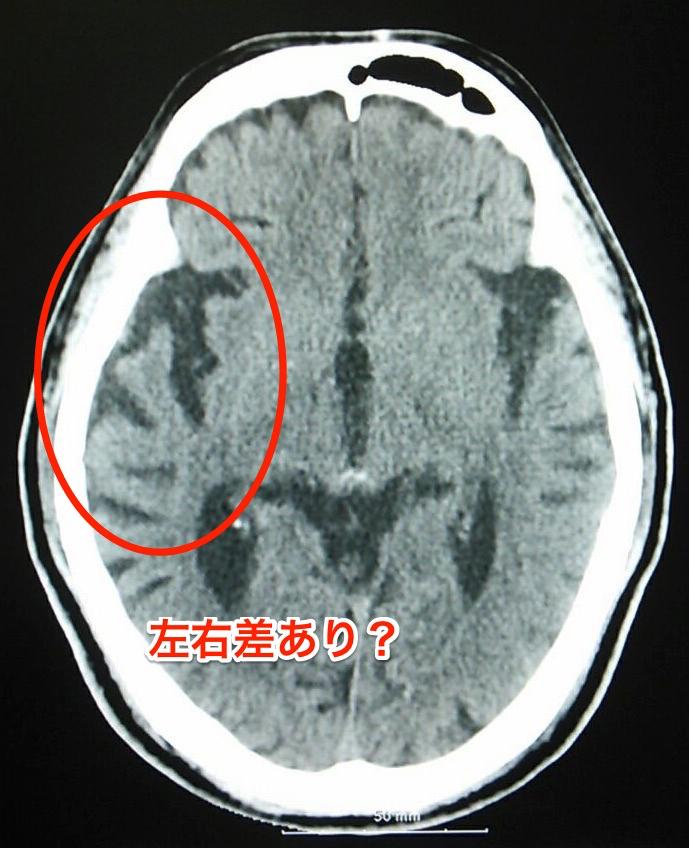 側頭葉萎縮のCT画像