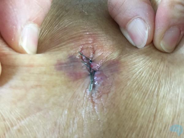 シャント手術後の傷