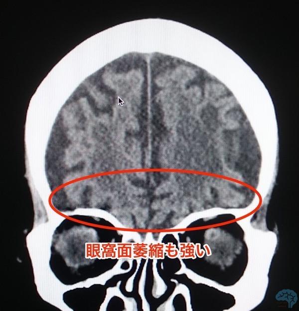 前頭葉眼窩面の萎縮を示すCT