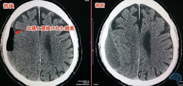 青木式による慢性硬膜下血腫の術前術後CT画像