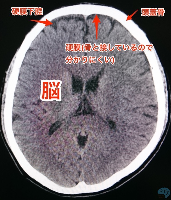 硬膜下腔のCT