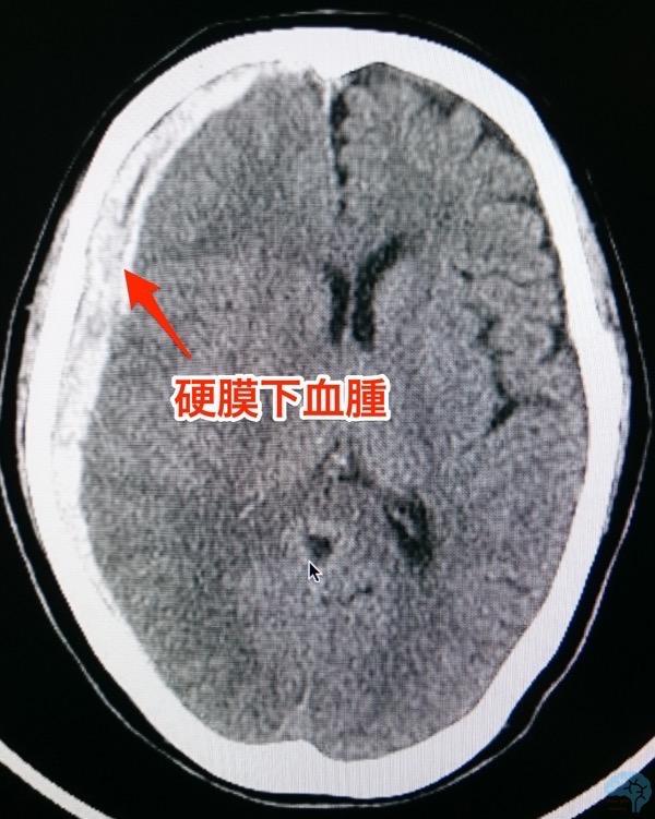急性硬膜下血腫のCT
