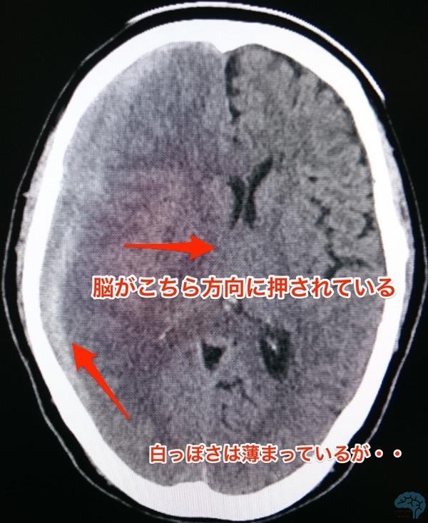 脳ヘルニア、正中偏倚、頭部CT