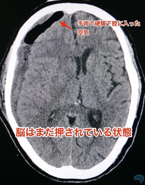 急性硬膜下血腫の穿頭術後CT