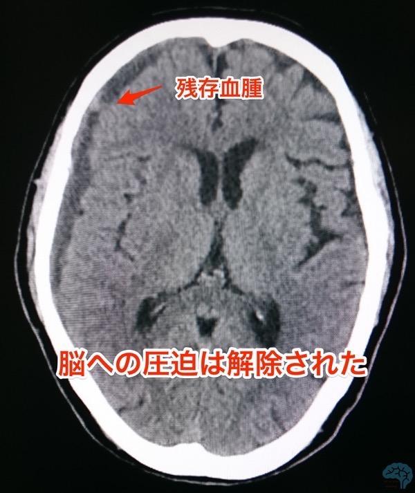 急性硬膜下血腫に対する術後2週間目の改善CT