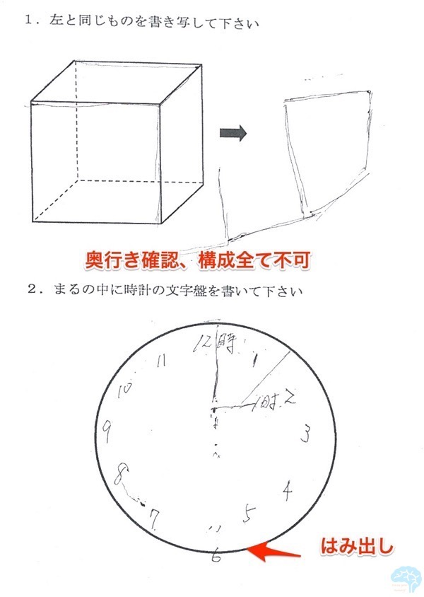 DLBの透視立方体模写と時計描画テスト