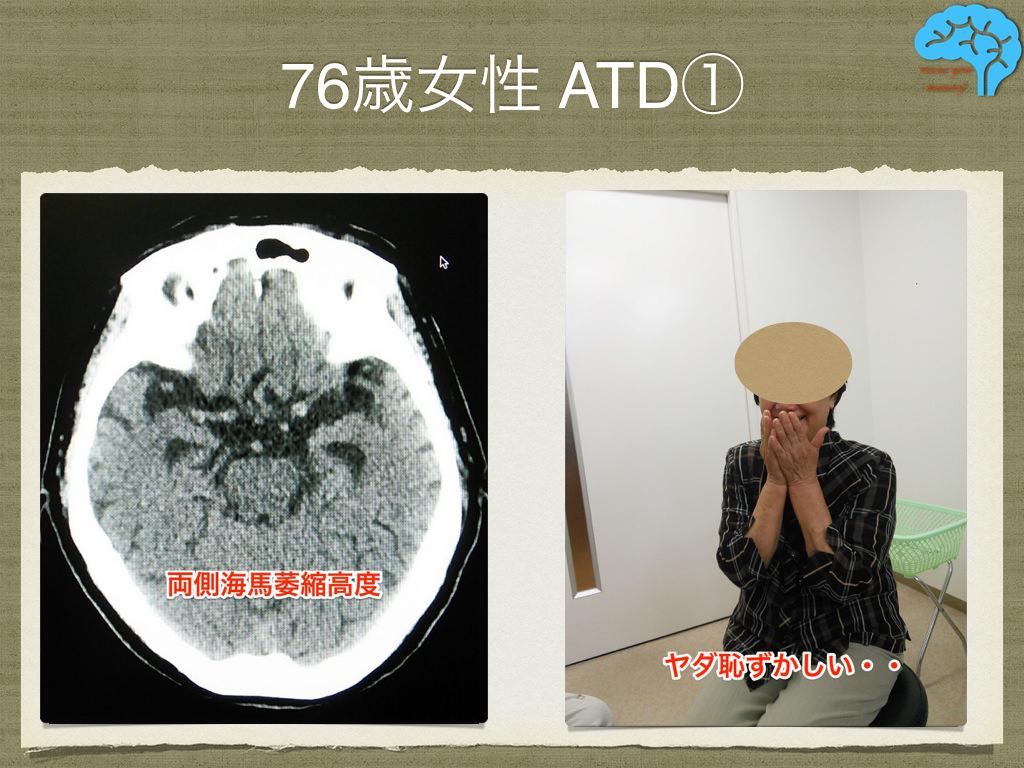 アルツハイマー型認知症の海馬萎縮