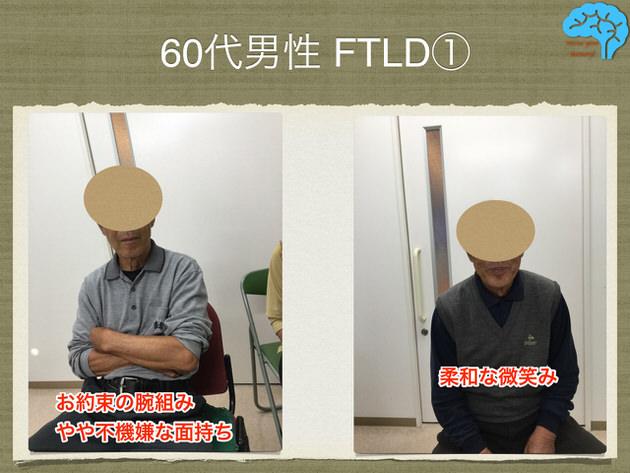 前頭側頭葉変性症の患者画像