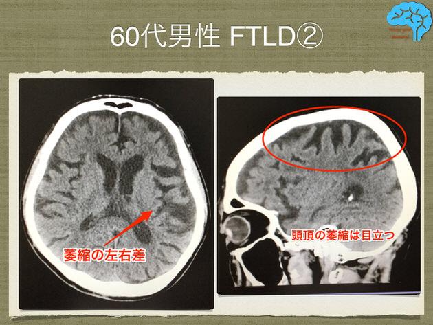 前頭側頭葉変性症とアルツハイマー型認知症が疑われる頭部CT