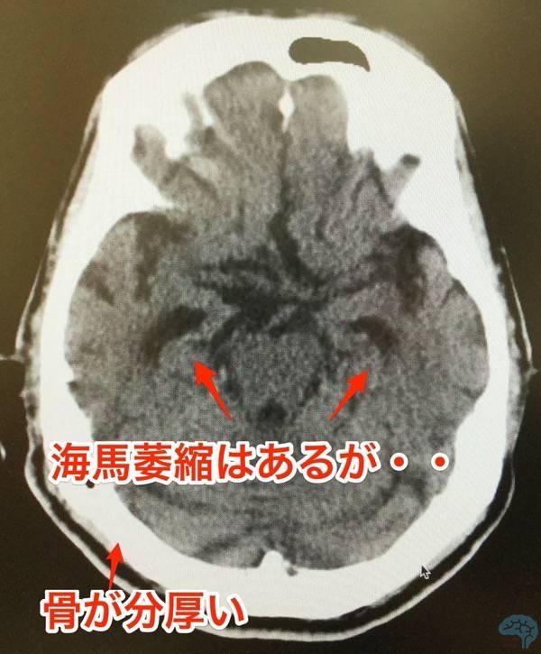 99歳の頭部CT