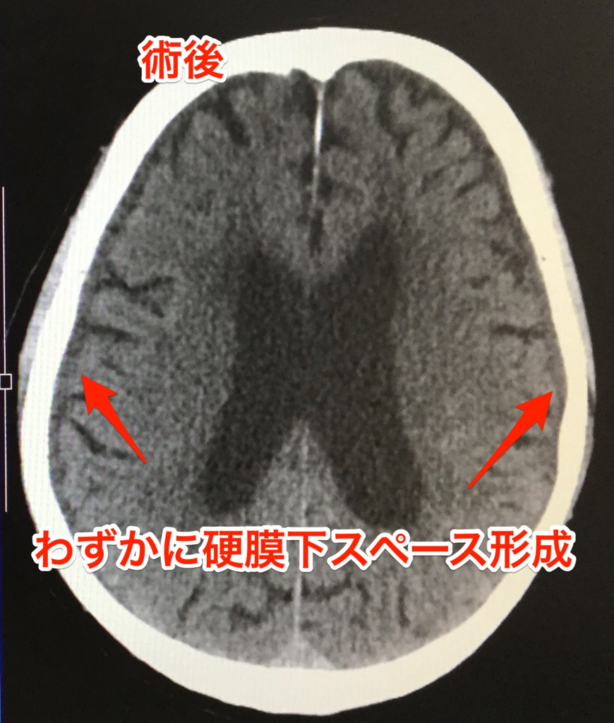LPシャント術後の慢性硬膜下血腫