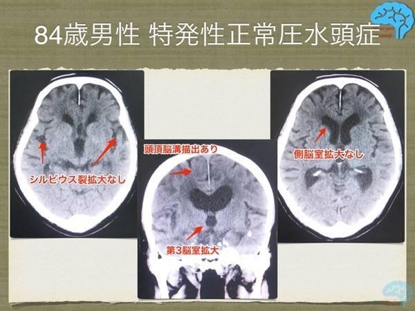 非典型的な画像所見の正常圧水頭症