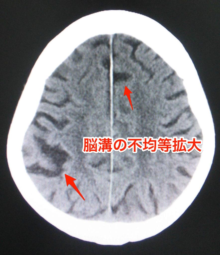 脳溝の不均等拡大
