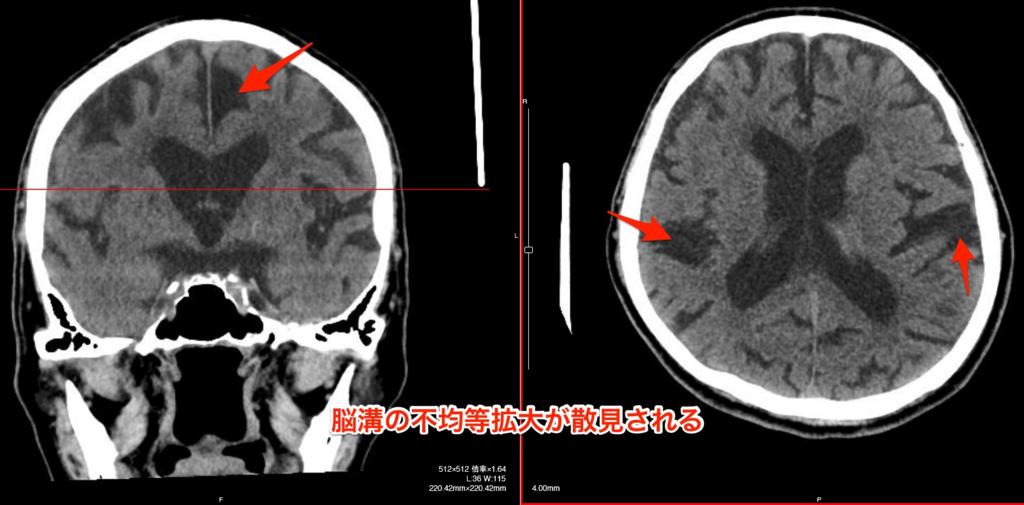 脳溝の不均等拡大の頭部CT画像