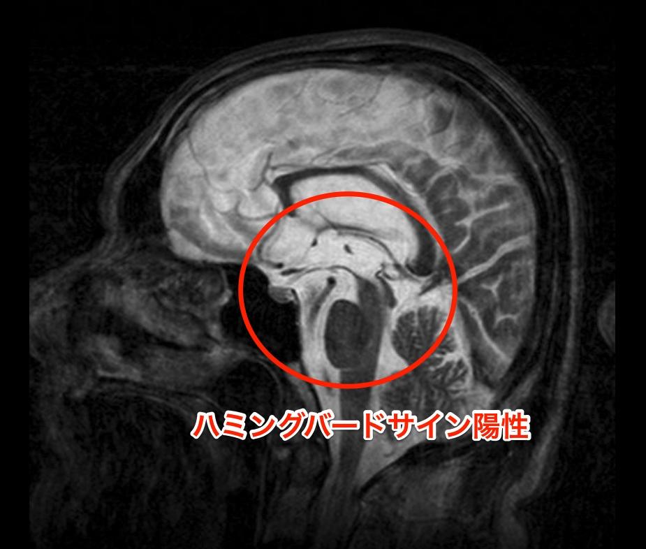 ハミングバードサイン陽性のMRI画像