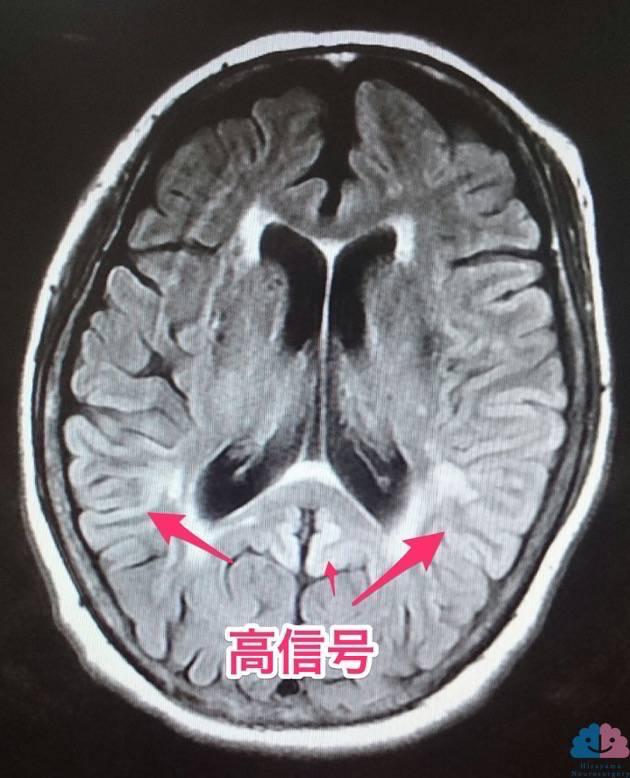 クロイツフェルト・ヤコブ病のMRI、FLAIR画像