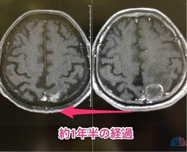 全脳照射後の脳萎縮を認めたMRI