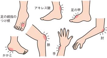 痛風で腫れる箇所