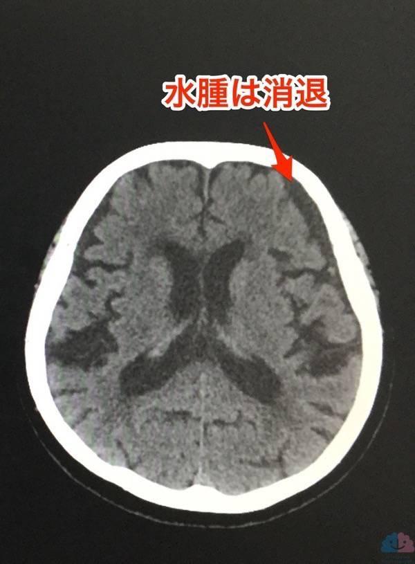 硬膜下水腫が五苓散で改善したCT