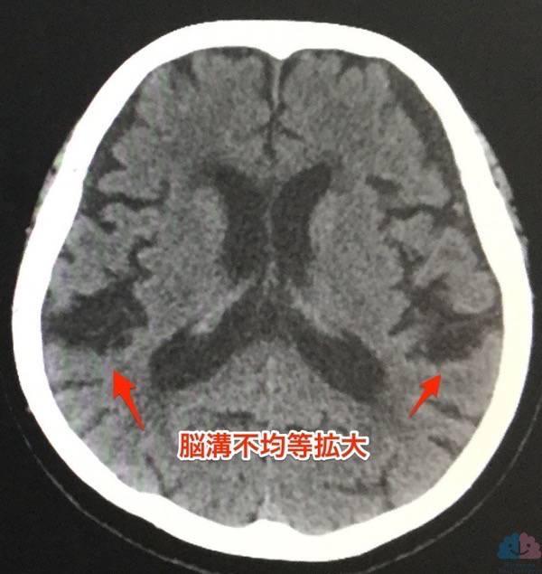 脳溝不均等拡大の頭部CT