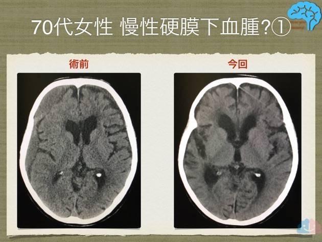 慢性硬膜下血腫の術前術後、基底核中心のスライス