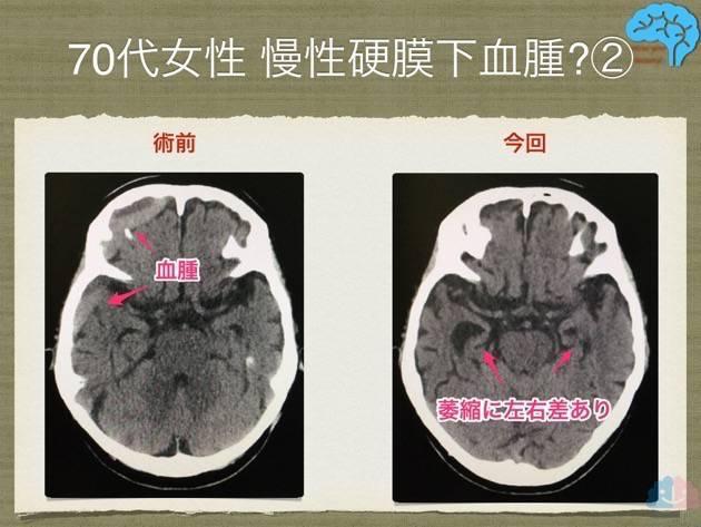 慢性硬膜下血腫の術前術後、側脳室下角の比較