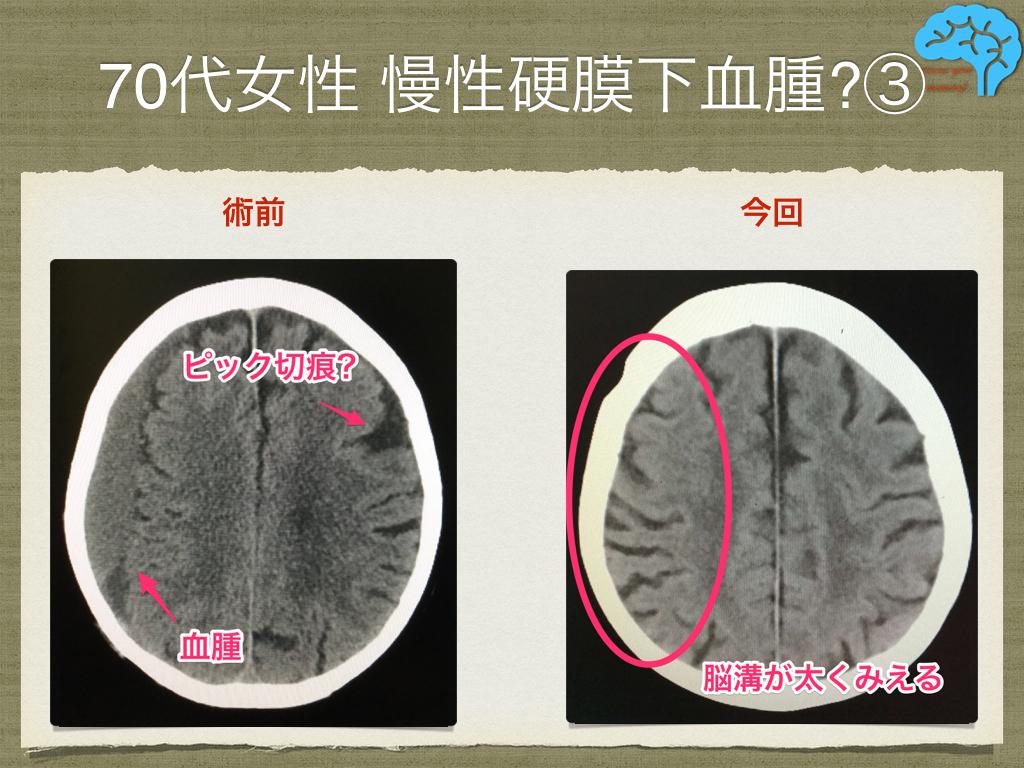 慢性硬膜下血腫の術前術後、ピック切痕と中心溝近傍の脳溝拡大