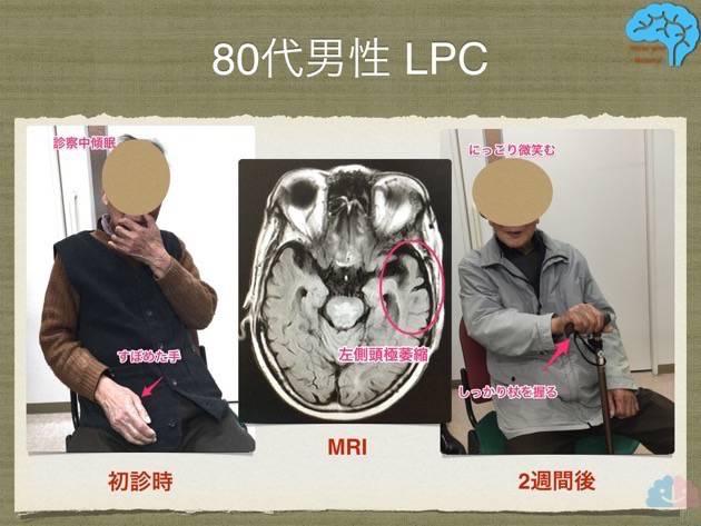 80代男性 LPC