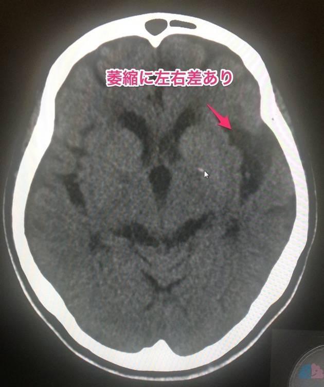 CTにおける脳萎縮の左右差