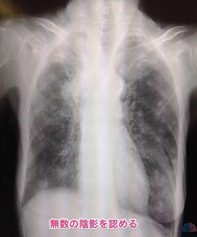 肺癌のレントゲン写真