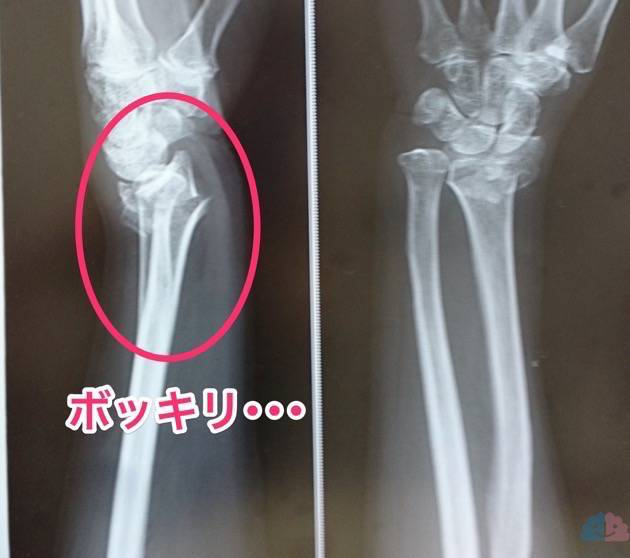 左コーレス骨折のレントゲン