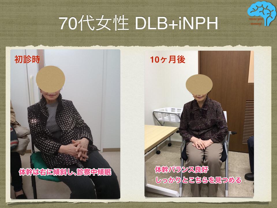 DLB+iNPHの治療成功例