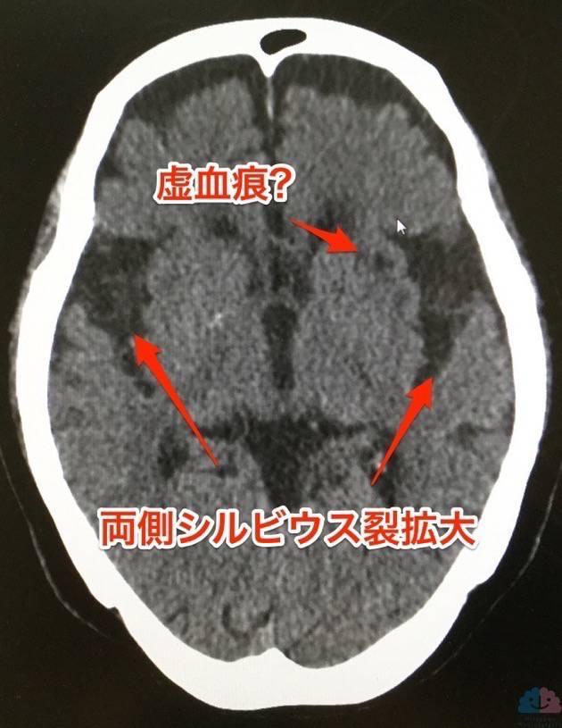 シルビウス裂拡大の頭部CT