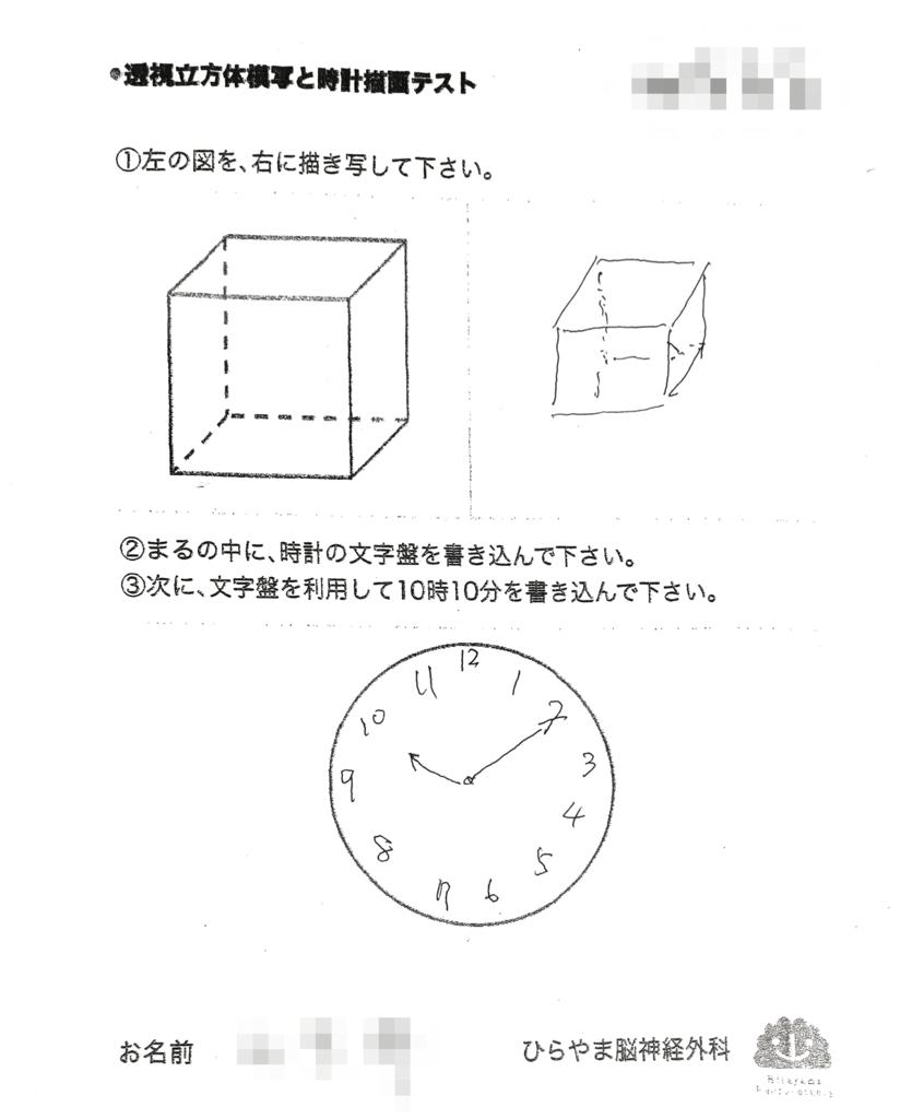 FTLDの透視立方体模写と時計描画テスト