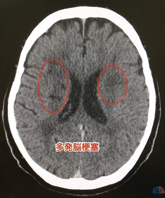 多発脳梗塞の頭部CT 真性多血症あり