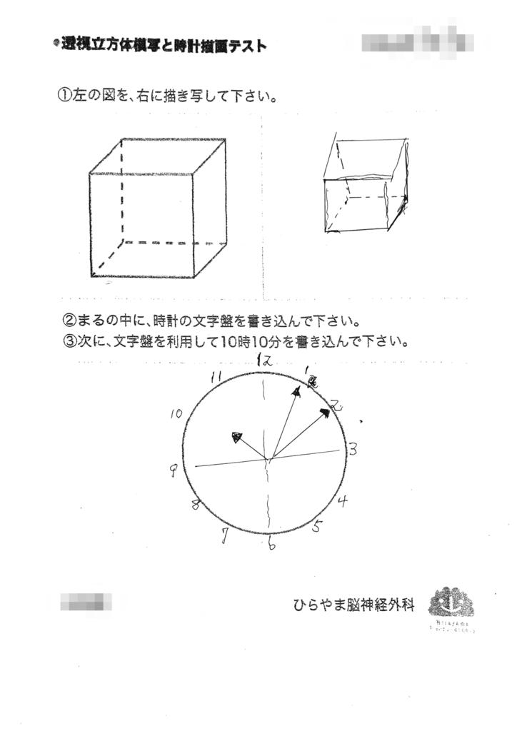 運転免許と透視立方体模写と時計描画テスト