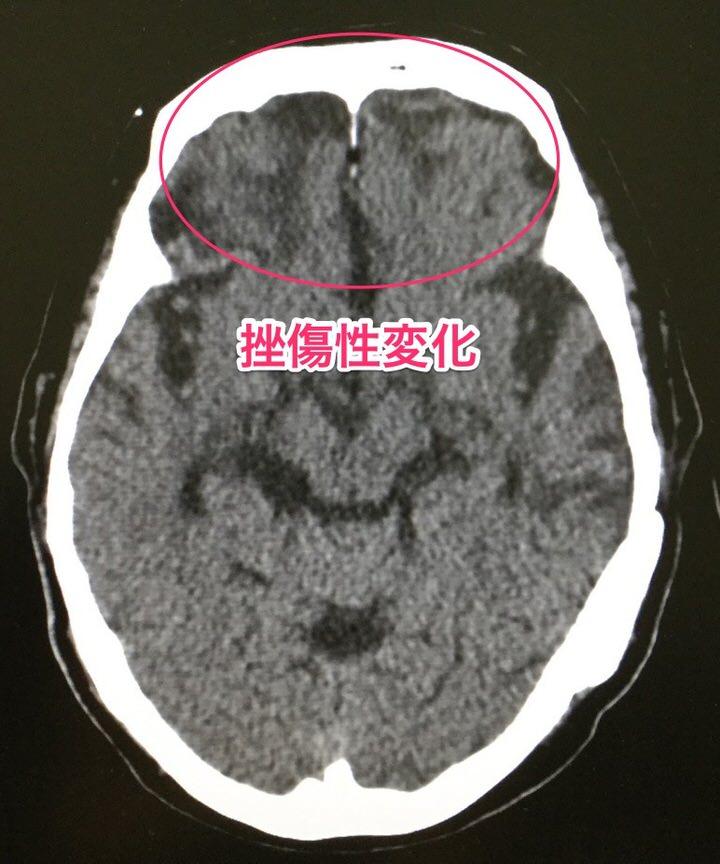 脳挫傷にアリセプト