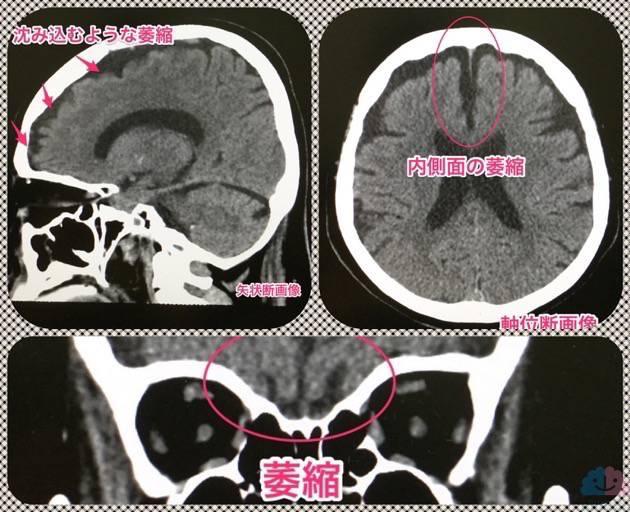前頭前皮質の頭部CT