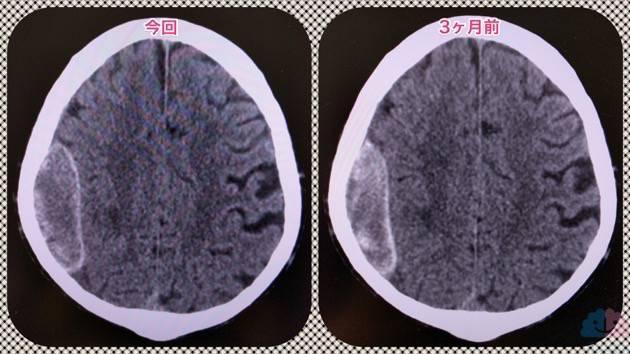 器質化した慢性硬膜下血腫