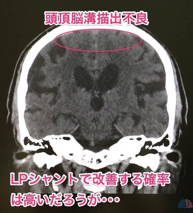 頭頂葉脳溝描出不良